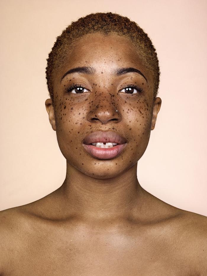 Fotografie/ Brock Elbank: Freckles